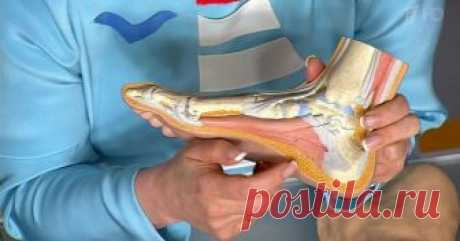 Секрет боли в спине у вас в ногах. 10 упражнений, которые исправят все Боль в спине— серьезная проблема, которая затрагивает миллионы людей во всем мире. Это чаще всего вызвано травмами, неправильной осанкой или сидением в течение длительного периода. Боль в спине может варьироваться от легкой до тяжелой, а позднее серьезно мешать вашему образу жизни и повседневной де