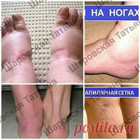 #ноги #отечность #варикоз Два месяца и ваши ножки, как у горной лани.