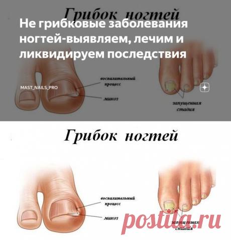 Не грибковые заболевания ногтей-выявляем, лечим и ликвидируем последствия | MAST-NAIL.RU | Яндекс Дзен
