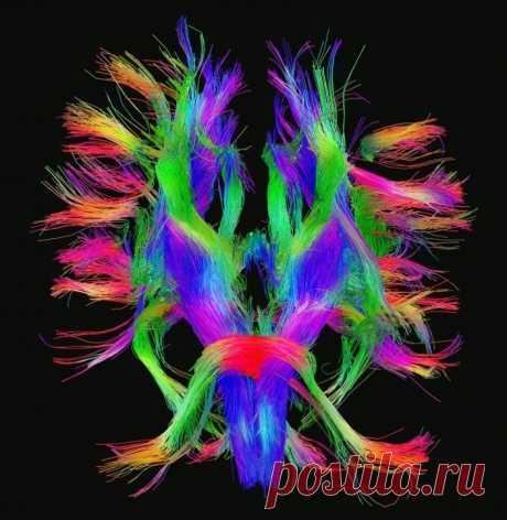 Ваш мозг ленивая сволочь или как предотвратить застывание и деградацию