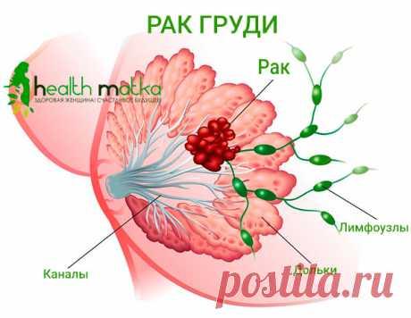 Рак груди: причины, диагностика, способы лечения