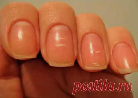 Белые пятна на ногтях: причины появления и как избавиться Белые пятна (лейконихия) на ногтях могут иметь разную форму: полоски, маленькие точки или круги. Это нарушение нормального функционирования ногтевой пластины. Такие изменения говорят о проблемах в организме и повреждениях. Что может привести к появлению белой пигментации на ногтях?  Первая причина — это нехватка витаминов, полезных элементов и здорового питания. В таком случае, стоит добавить в свой рацион сезонные овощи и фрукты, котор