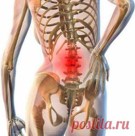 Упражнения для поясницы, которые избавят от боли без лекарств Поясничные мышцы обеспечивают смягчение или амортизацию компрессионной нагрузки на позвоночный столб. Логично, что укрепление мышц поясницы позволит им лучше выполнять свою функцию.