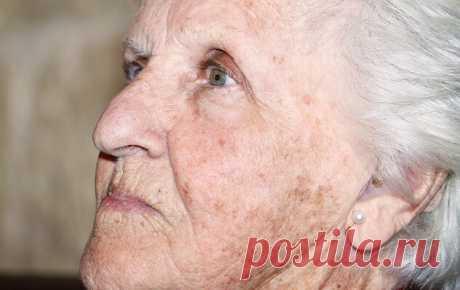 Возрастные пятна на коже – почему появляются и можно ли от них избавиться — Бабушкины секреты