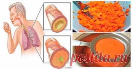 Древний домашний рецепт сиропа, который удаляет мокроту из легких и излечивает от кашля — ГАРМОНИЯ В СЕБЕ