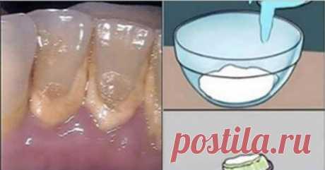 Раствор для быстрого удаления зубного камня - interesno.win