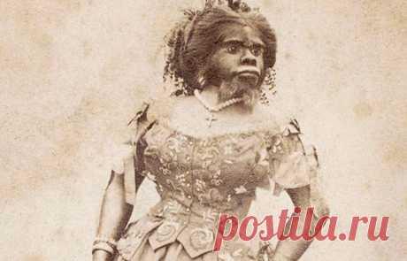 Хулия Пастрана — чудовище, которое все любили