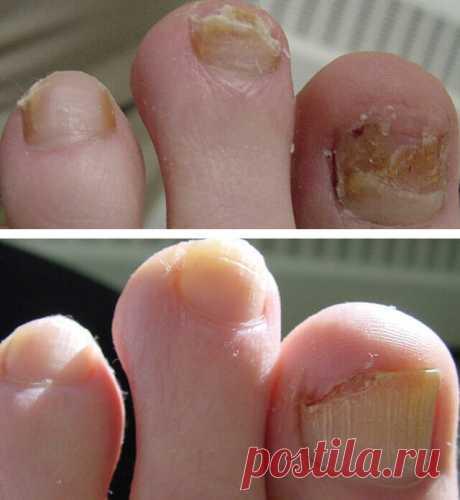Грибок ногтей гомеопатическое лечение Пенсионеры! Не стригите грибковые ногти! ... Вылечить грибок ногтей на ногах народными средствами или при помощи медикаментозной терапии удается лишь при постоянном и регулярном проведении процедур, направленных на излечение микоза. Способы лечения