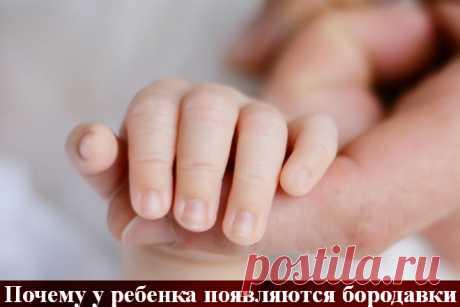 Бородавки у детей появляются при заражении вирусом папилломы человека. Для малышей дошкольного возраста характерны папилломы на коленках, кистях, пальцах рук, ладошках. У подростков они концентрируются на спине, лице.