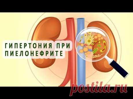 Гипертония при пиелонефрите. Гипертонический пиелонефрит