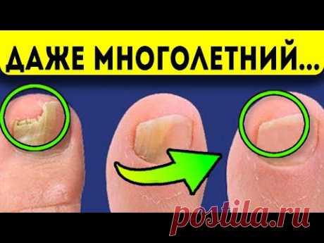 Многолетний грибок боится простого копеечного… Народная медицина для лечения грибка ногтей