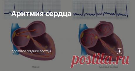 """Аритмия сердца  """"У меня аритмия сердца. Это опасно или нет?"""" -  Это самый частый вопрос к кардиологу, особенно в соцсетях.  Давайте разбираться, вопрос непростой и сразу требует уточнения, что диагноза «аритмия сердца» нет.  Дословно аритмия означает, что есть нарушения частоты, ритмичности и последовательности возбуждения в сердце. Существует огромное количество аритмий, у каждой аритмии есть своё название( диагноз), причина и способ лечение. Подавляющее количество аритми..."""