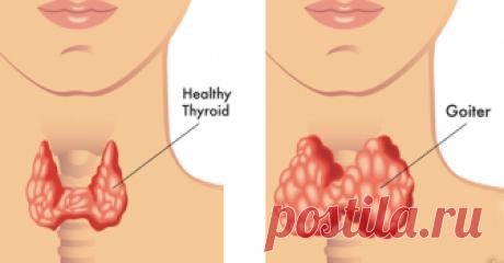 7 изменений в жизни, которые могут помочь в лечении щитовидной железы