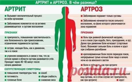 Артрит и артроз. В чем разница