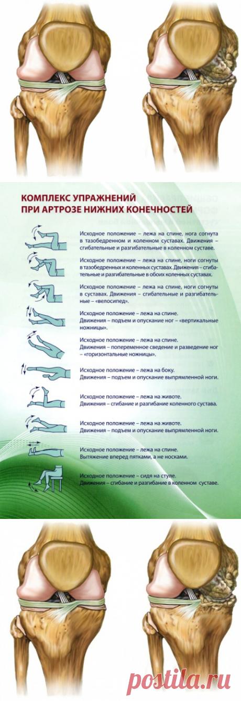 Артроз нижних конечностей, симптоматика, рецепты народной медицины, комплекс упражнений при артрозе нижних конечностей