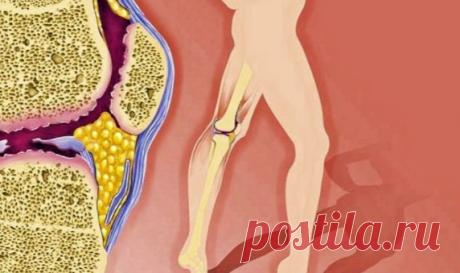 Продукты, которые нужно срочно исключить при артрите Артрит – это поражение суставов, которое вызывается воспалительными процессами в организме. Это довольно часто встречающаяся патология, главным симптомом ее является сильная боль. Обрести хорошее самочувствие и не допустить прогрессирования болезни, поможет правильно составленный рацион.