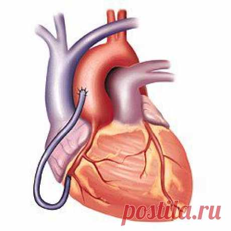 (+1) a subject - 11 possible symptoms of heart attack | BEAUTY AND HEALTH