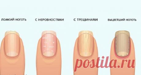 Предупреждающие признаки ваших ногтей о вашем здоровье