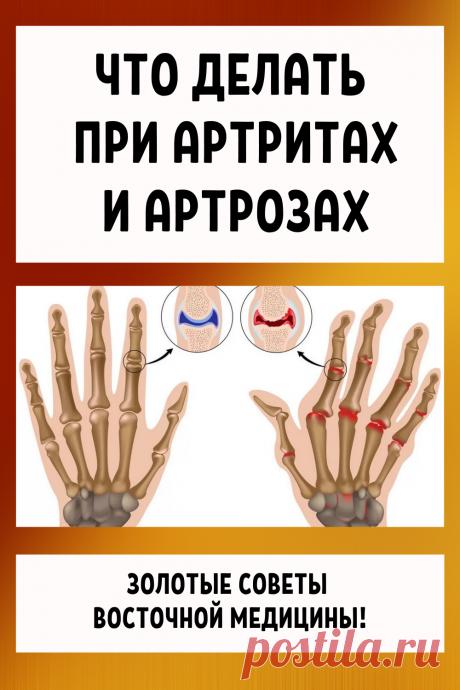 Что делать при артритах и артрозах... Золотые советы восточной медицины.