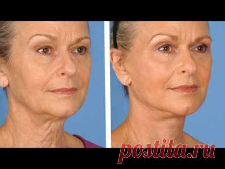 Простая сыворотка остановит старение, омолодит и подтянет кожу
