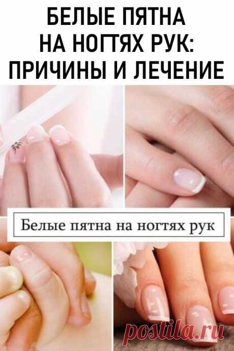 Белые пятна на ногтях рук как следствие нарушений в организме. Если пятнышек мало и по мере отрастания ногтя они исчезают, то волноваться нет причин. При постоянном появлении белых пятен или полосок не стоит их скрывать за маникюром, думая, что это всего лишь небольшая проблема. В этом случае может идти речь о такой патологии, как лейконихия.
