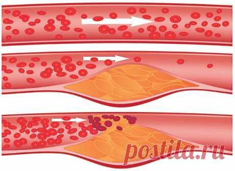 Доктор Евдокименко рассказал: виноват ли холестерин в развитии атеросклероза и как очистить сосуды дома без лекарств | Голос Правды – Новости Красноармейского района