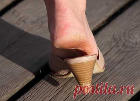 Лучшие кремы от натоптышй на ногах, пятках - обзор 4 хороших