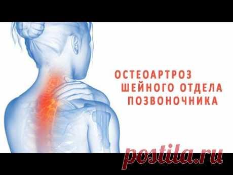 Что нужно знать об остеоартрозе шейного отдела позвоночника