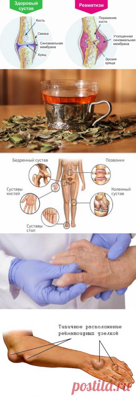 Лечение ревматизма народными методами: спасительные травы придут на помощь