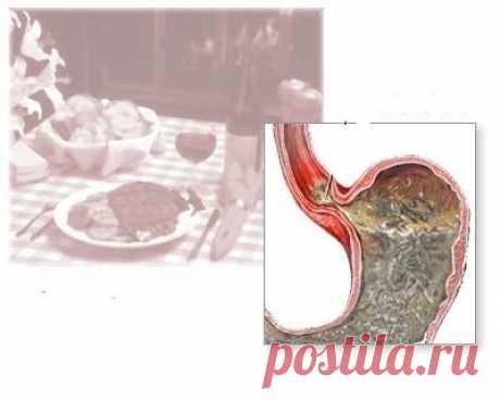 Гастроэзофагеальная рефлюксная болезнь: симптоматика, причины возникновения и лечение :: SYL.ru