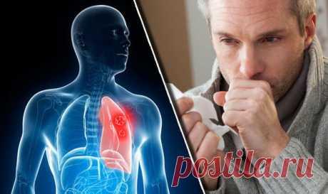 Як вигнати слиз і мокроту з горла і грудей: 5 засобів, які працюють | ОТОЖ