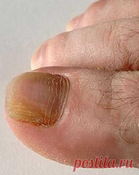 Как размягчить ногти на ногах: способы лечения