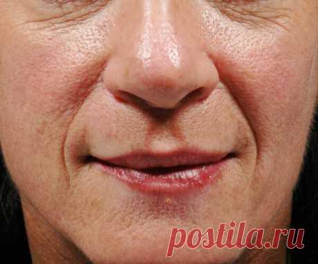 Как заполнить морщины не хуже ботокса. Рецепт замечательной маски   50+   Яндекс Дзен