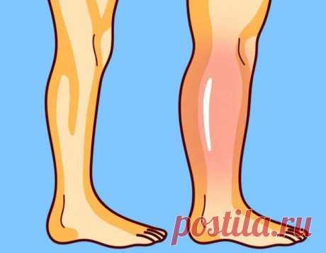 Упражнения от остеопата для снятия отёков ног - Народная медицина - медиаплатформа МирТесен Отёчность ног — это не только следствие «стоячей» работы, как считают многие обыватели. Часто за отеками нижних конечностей кроются белее серьезные причины. Например, проблемы со здоровьем. Вот как можно снять отечность ног. Тяжело быть на ногах целый день. Те, кто по необходимости не могут
