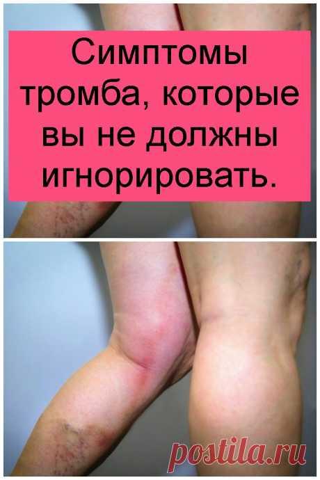 Симптомы тромба, которые вы не должны игнорировать.