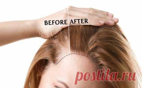 Секретная формула роста волос с маслом витамина Е Хотите длинные и густые волосы!