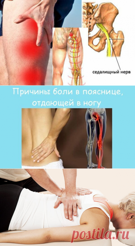 Мануальная терапия при боли в пояснице и ноге.   Альтернативная медицина   Яндекс Дзен