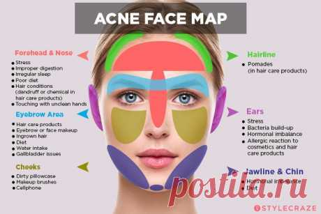 Face Mapping: Can You Use It to Improve Your Skin's Health?