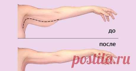 Как убрать жир с рук: эффективные упражнения для всех, кому надоела дряблая кожа