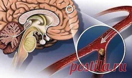 НАРОДНЫЕ СРЕДСТВА ДЛЯ УЛУЧШЕНИЯ МОЗГОВОГО КРОВООБРАЩЕНИЯ  Нарушение мозгового кровообращения  Гипертония и атеросклероз — две основные причины, приводящие к нарушению мозгового кровообращения.  Именно из-за них развивается паралич, падает зрение, теряется координация, нарушается движение, возникает инсульт. Хронические сосудистые заболевания мозга называются дисциркуляторной энцефалопатией.  Ее симптомы развиваются медленно и не всегда заметны не только окружающим. Часто и...