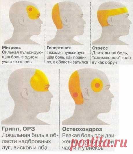 Зоны локализации головной боли и ее причины — Полезные советы