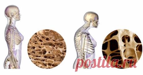 Лечение и профилактика остеопороза: 7 способов увеличения плотности костей-ПИТАНИЕ