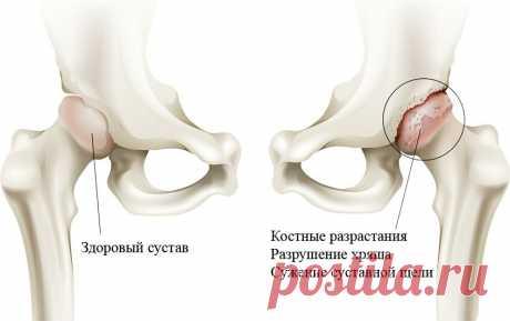 «Кривобокая» болезнь – коксартроз | Доктор ЕЛАМЕД | Яндекс Дзен
