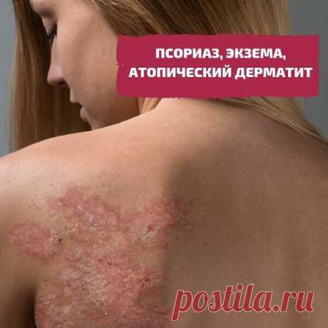 Псориаз, экзема, атопический дерматит. #1 | Гид по Телу 🌿 | Яндекс Дзен