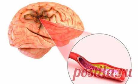 Хроническая ишемия головного мозга: причины, симптомы и лечение в статье невролога Пахтусова Н. А.