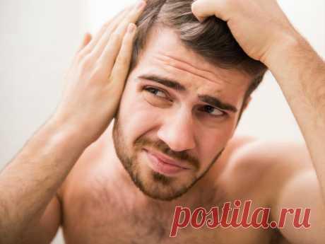 Выпадение волос у мужчин: причины и лечение | КУДРИ-ЛОКОНЫ | Яндекс Дзен
