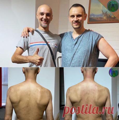 Посещение остеопата. Приятное знакомство и положительный результат   ЗОЖ путь изнутри вовне   Яндекс Дзен