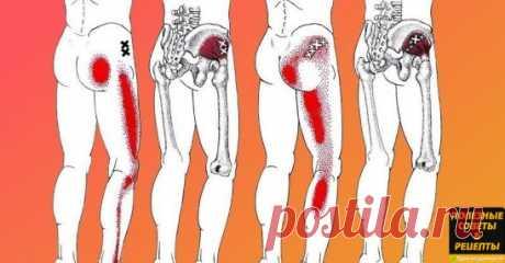 Если у тебя воспаление седалищного нерва, воспользуйся ЭТИМ средством для его лечения! В последние годы от неврологических заболеваний страдает всё больше людей. Больные нередко жалуются на тянущие боли в спине, пояснице и области ягодиц. Неприятные ощущения могут опускаться к ногам. Ишиас — это очень неприятное заболевание, связанное с защемлением и воспалением седалищного нерва в пояснично-крестцовом отделе позвоночника. Некоторые врачи называют этот недуг пояснично-крес...