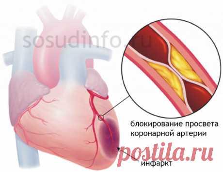 Реабилитация после инфаркта: жизнь, питание, диета, инвалидность, работа...