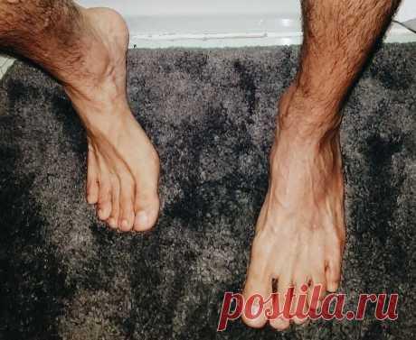 Что о мужчине могут рассказать пальцы на ногах